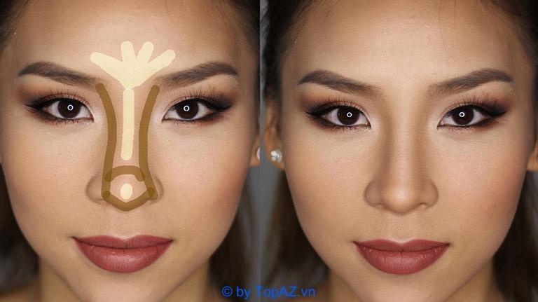 6 Cách thu gọn cánh mũi không cần phẫu thuật bạn nên biết