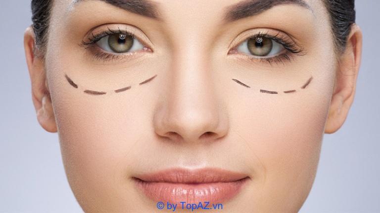 Ưu, nhược điểm của phương pháp cắt mí mắt