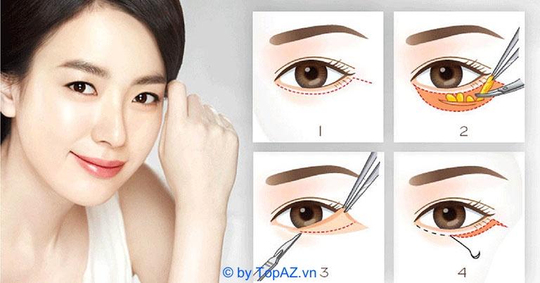 Quy trình lấy mỡ bọng mắt