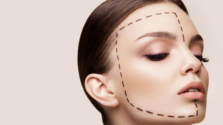 Ưu điểm và hạn chế đối với phương pháp nâng mũi cấu trúc