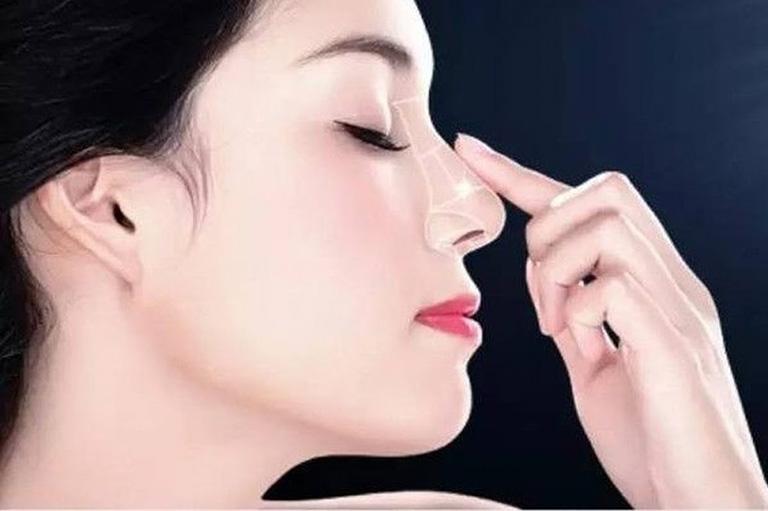 Sau khi nâng mũi nên kiêng những gì?