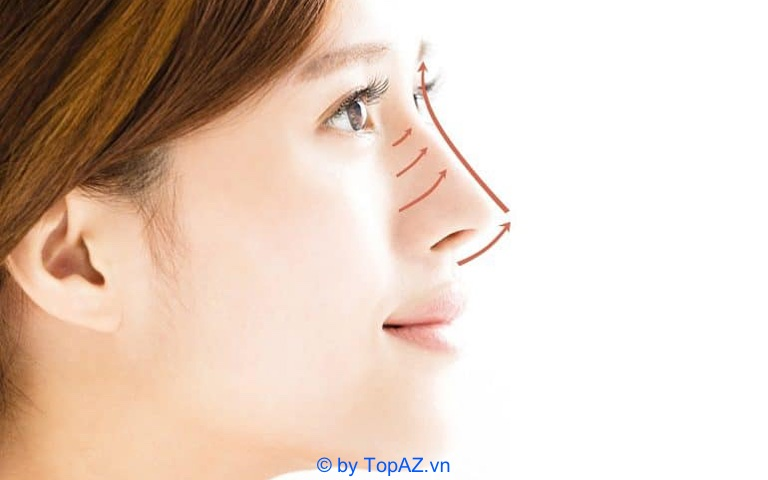 Nâng mũi bằng chỉ giữ được bao lâu?