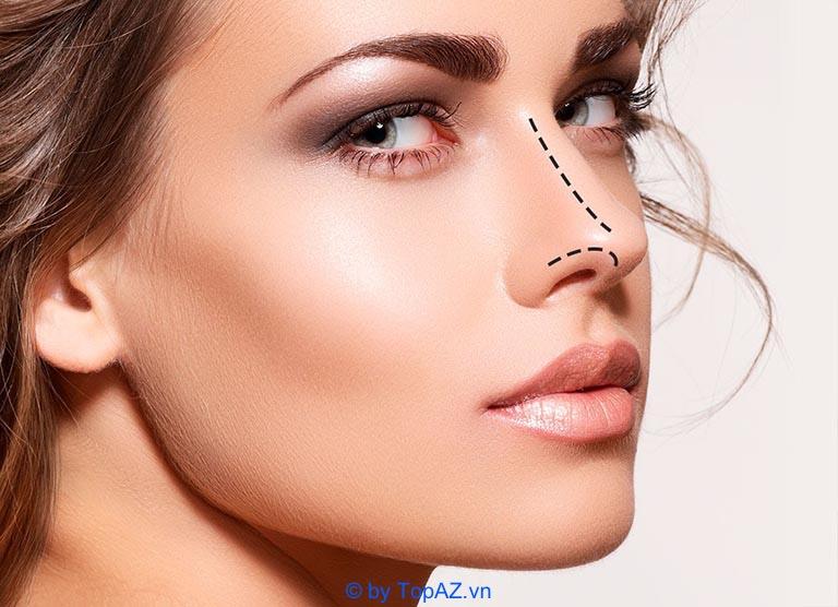 Vì sao nâng mũi bằng sụn tự thân lại đắt hơn các phương pháp khác?
