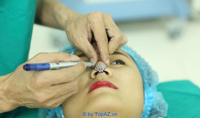 Chi phí nâng mũi bằng sụn tự thân phụ thuộc vào những yếu tố nào?