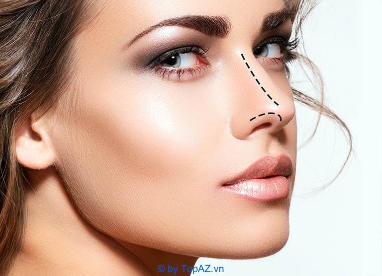 Nâng mũi bằng sụn tự thân là gì?