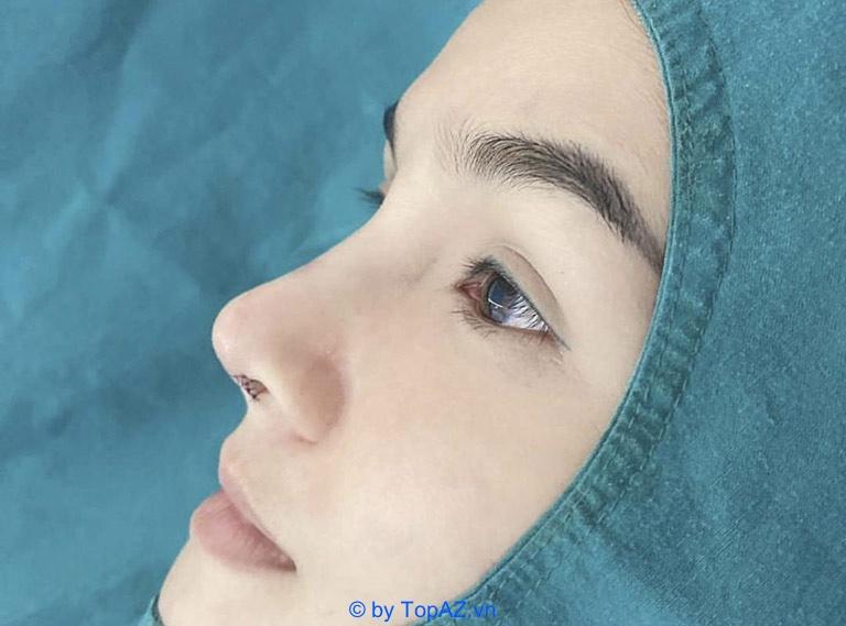 Nâng mũi bằng sụn tự thân có mấy loại?