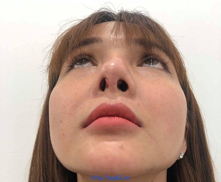 Nâng mũi bị lòi sụn trong mũi