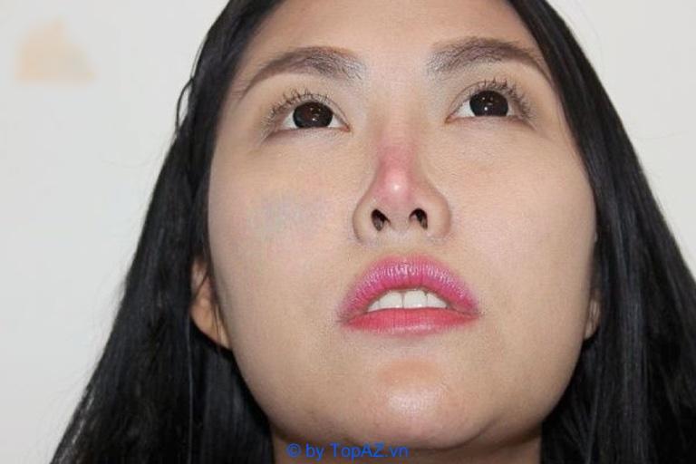 Nâng mũi bọc sụn bị đỏ đầu mũi: Nguyên nhân do đâu?