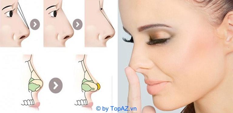 nâng mũi cân cơ thái dương là gì