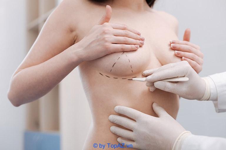 Những điều cần lưu ý khi nâng ngực