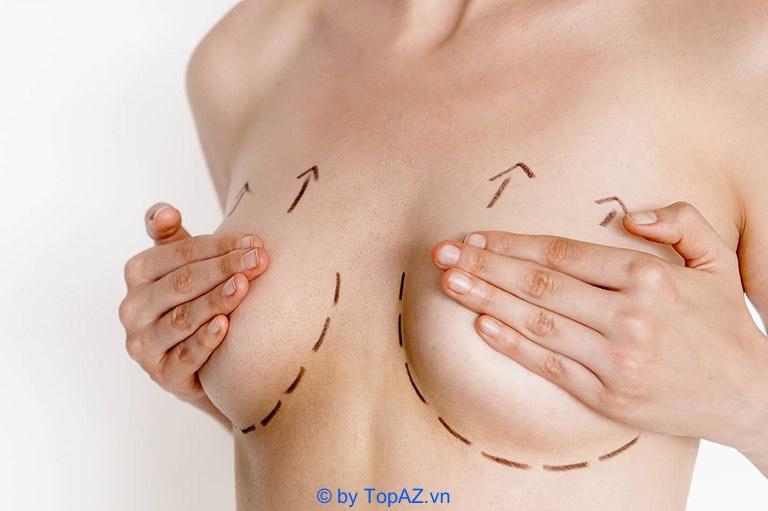 3 Phương pháp nâng ngực an toàn hiện nay