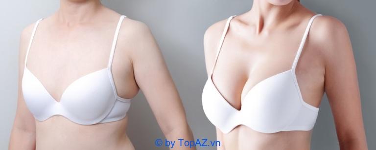 Nâng ngực Nano Chip là gì?