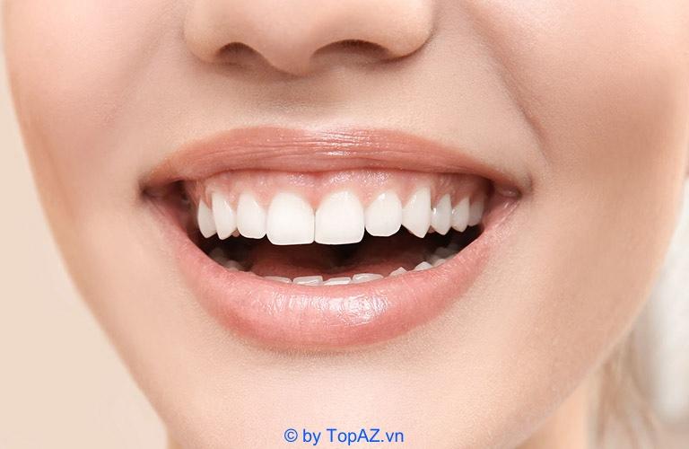 Tìm hiểu về tình trạng cười hở lợi