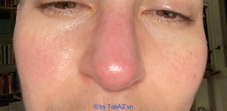 tiêm filler mũi có đau không