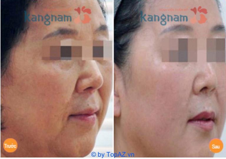 địa chỉ căng da bằng chỉ Collagen tốt nhất TPHCM